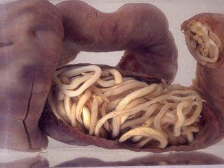 paraziti kod ljudi